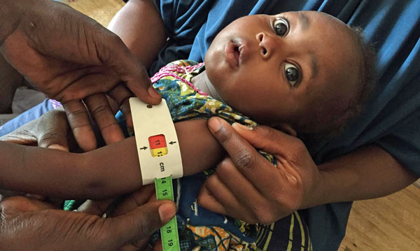 Growing Health Crisis as Famine Threatens Nigeria